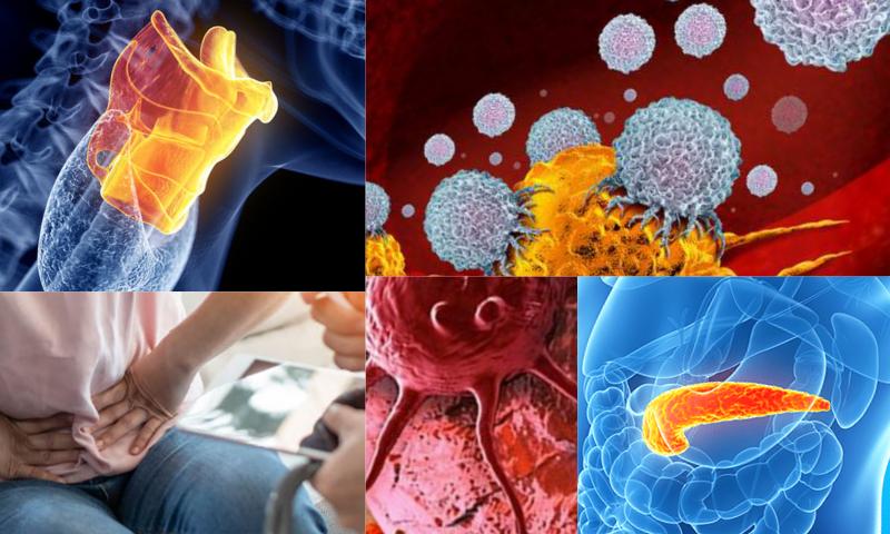 Pankreas Kanseri Belirtileri Nelerdir?