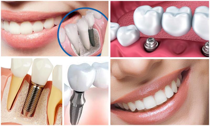 Geleneksel Tedavi Yöntemlerinden Protetik Diş Tedavisi