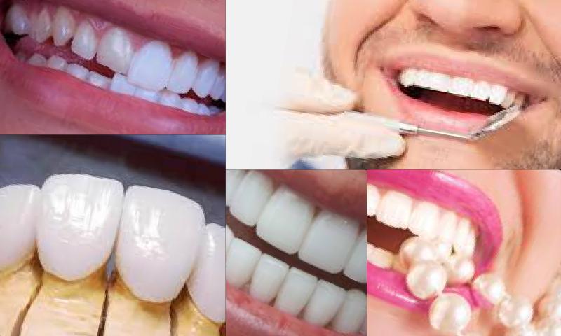 Zirkonyum Altyapılı Porselen Diş Kaplama Yöntemi